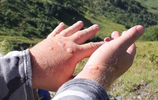 Борщевик-ядовитое-растение-чем-опасен-и-как-с-ним-бороться-11